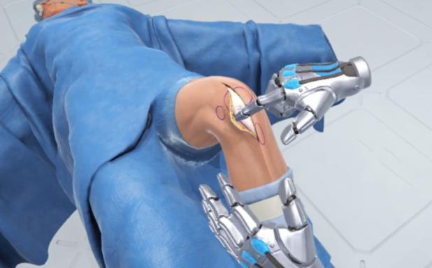 Ghost Productions Wraith VR Total Knee Replacement Surgery Simulation Torrent Download